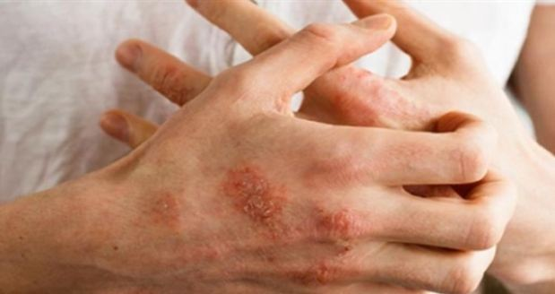 used to scratch over and over be careful of neurodermatitis